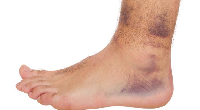 تغییر رنگ پوست در پاها
