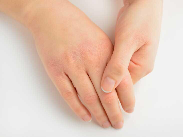 کمبود چه ویتامینی باعث پوسته شدن انگشتان میشود