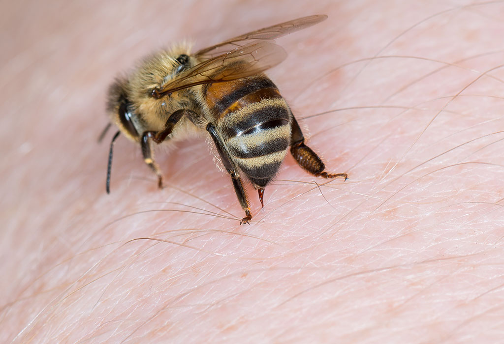 ورم نیش زنبور