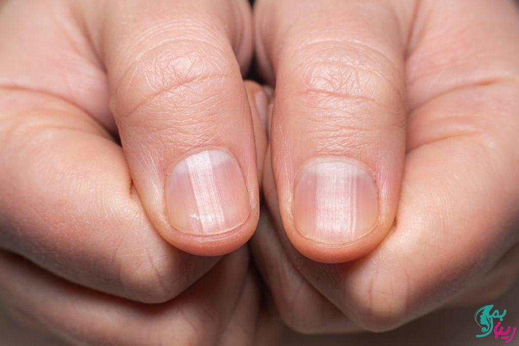 خطوط روی ناخن