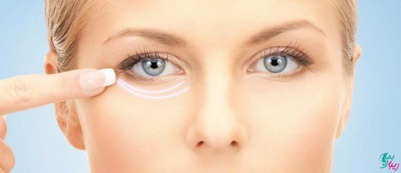 مزوتراپی زیر چشم